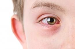 The many shades of pinkeye