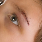 Does My Child Need Stitches?