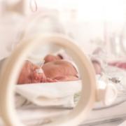 Premature Infants